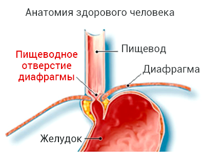 Симптоми і лікування грижі стравоходу