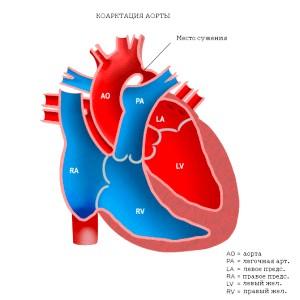 Симптоми и лікування коарктації аорти