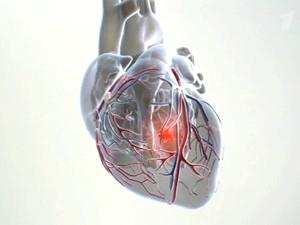 Симптоми и лікування Гостра інфаркту міокарда