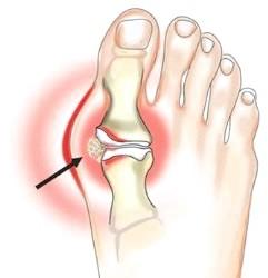 Симптоми і лікування подагрічного артриту