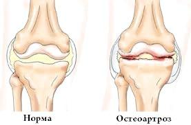 Симптоми остеоартрозу
