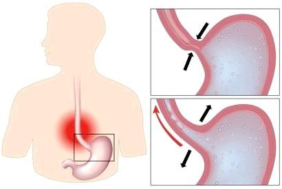 Симптоми захворювання рефлюкс езофагіту