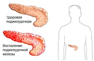 Способи ефективного лікування хронічного панкреатиту