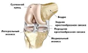 Зв'язки колінного суглобу: запаленою