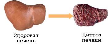 Умови розвитку цирозу печінки