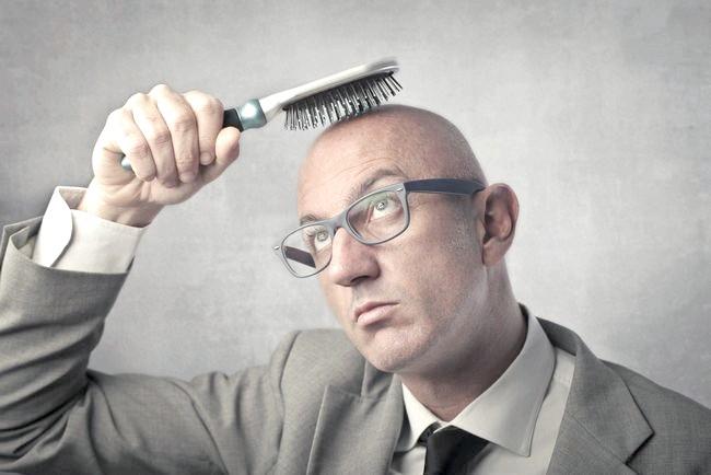 Успішність трансплантації волосся у чоловіків