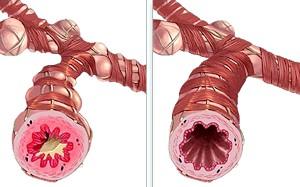 Дізнайся и попереду Симптоми серцевої астми