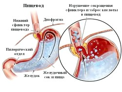 Запалення слизової оболонки стравоходу