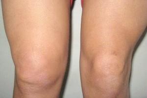 Віпіт в колінному суглобі