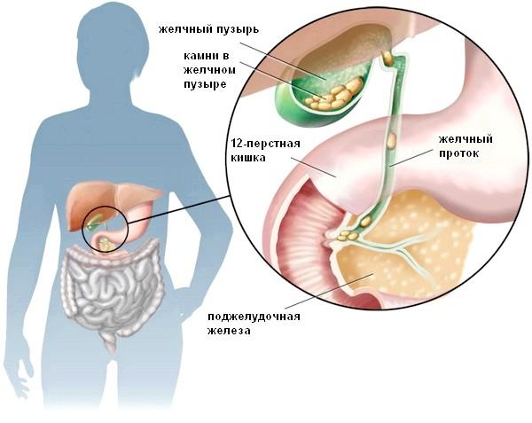 Як виявляється жовчокам'яна хвороба і як її розпізнати