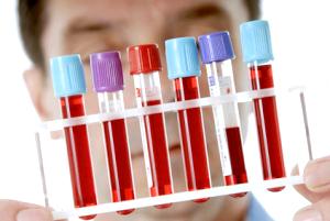 Аналіз на антитіла до тиреоїдної пероксидази