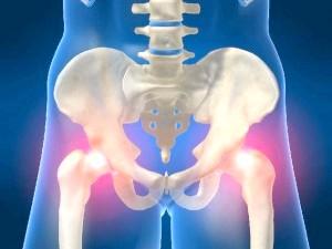 Біль у тазостегновому суглобі