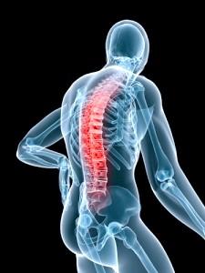 Хвороба Бехтерева: у чому причина болю в попереку?
