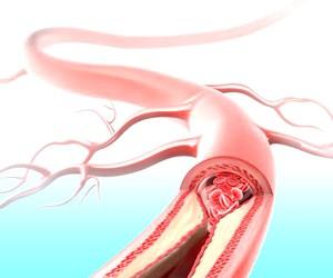 Що таке ішемія головного мозком?