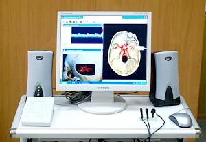 Доплерографія - один з методів діагностики захворювання