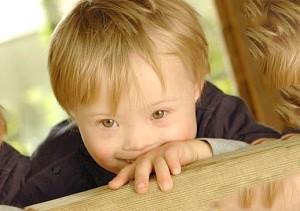 Дитяча хвороба: як не продивитися синдром Шерешевського-Тернера