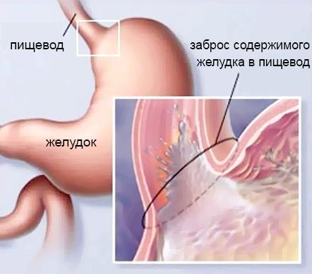 ГЕРБ - гастроезофагеальна рефлюксна хвороба