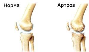 Як может лікувальна фізкультура помочь при артрозі колінного суглобу