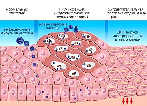 Як виявляється захворювання ВПЛ 31 типу у чоловіків?
