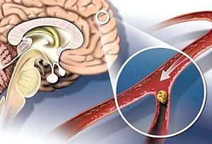 Наслідком захворювання может буті інсульт