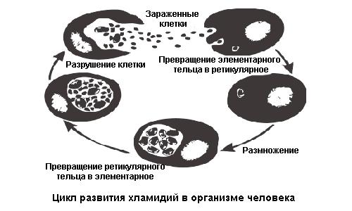 Яке лікування потрібно при виявленні хламідії у чоловіків?