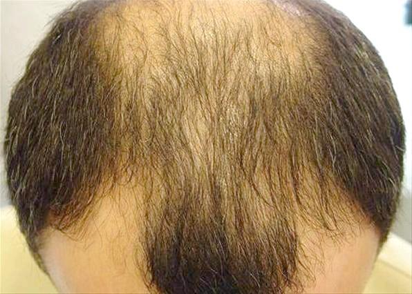 Лікування залисин і випадіння волосся на лобі у чоловіків