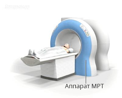 Магнітно резонансна томографія черевної порожнини