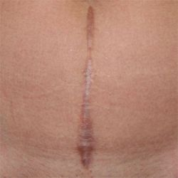 Методи лікування келоїдних і гіпертрофічних рубців