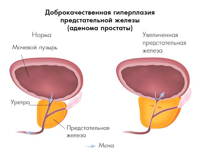 Народні рецепти з сурепки при лікуванні простатиту