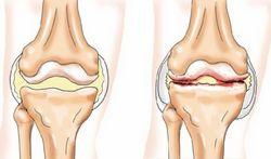 Народні засоби для лікування хвороб суглобів і кісток