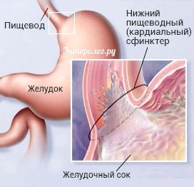 Недостатність кардії шлунка (халазія кардії)
