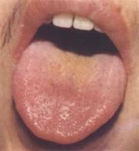 Причини чорного нальоту на язиці