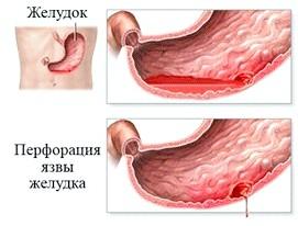 Проривна виразка шлунка (перфорація)