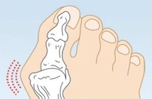 Шишки на пальцях ніг