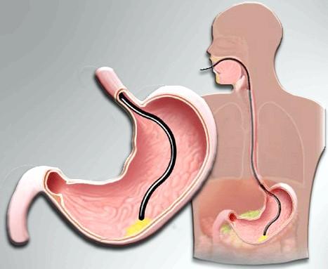 Симптоми виникнення поліпів у шлунку