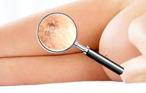 Симптоми и лікування варикозного Розширення вен при вагітності