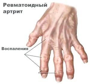 Симптоми ревматоїдного артриту
