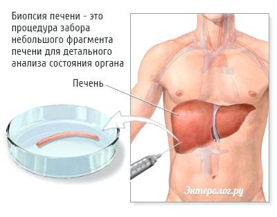 процедура біопсії печінки