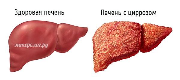 здорова печінка і печінку з цирозом