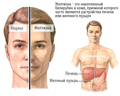 зовнішні симптоми дисфункції печінки і жовчного міхура