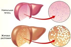 Стеатогепатит, клінічні прояви ураження печінки