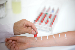 Тест на алергію, алергічні проби - що таке і де зробити?