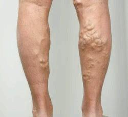 Варикозне розширення вен, народне лікування варикозу