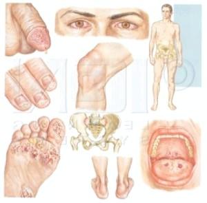 Внутрішній ворог: лікування хламідіозу