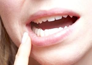 Запалення порожнини рота: симптоми і лікування стоматиту!