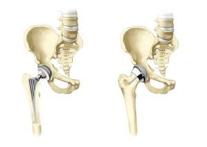 Відновлення після ендопротезування кульшового суглобу