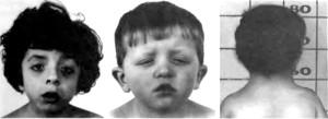 Вроджена патологія: що таке синдром Ульріха Нунана?