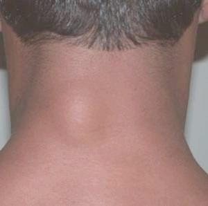 Жировики на спіні, шії: причини, лікування, відалення жировик